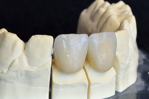 dental crowns in Manteno