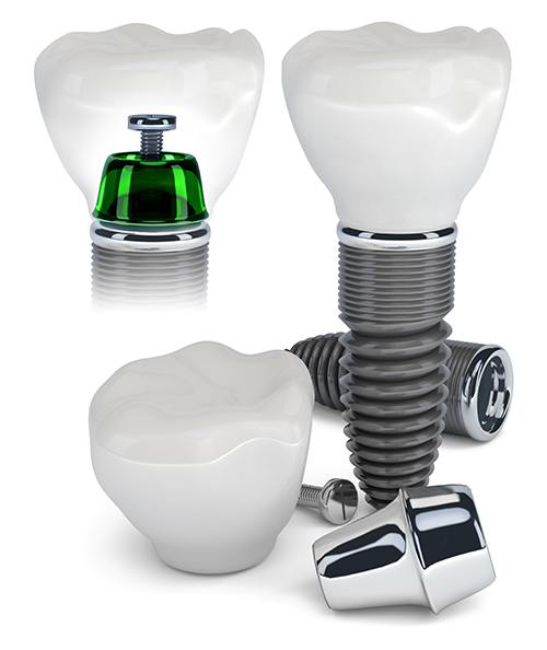 Manteno dental implants