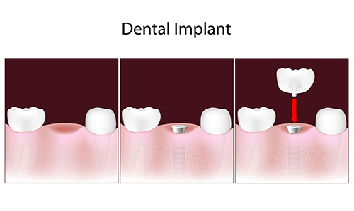dental implants Manteno