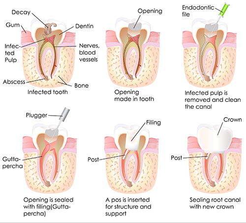 root canal in Manteno